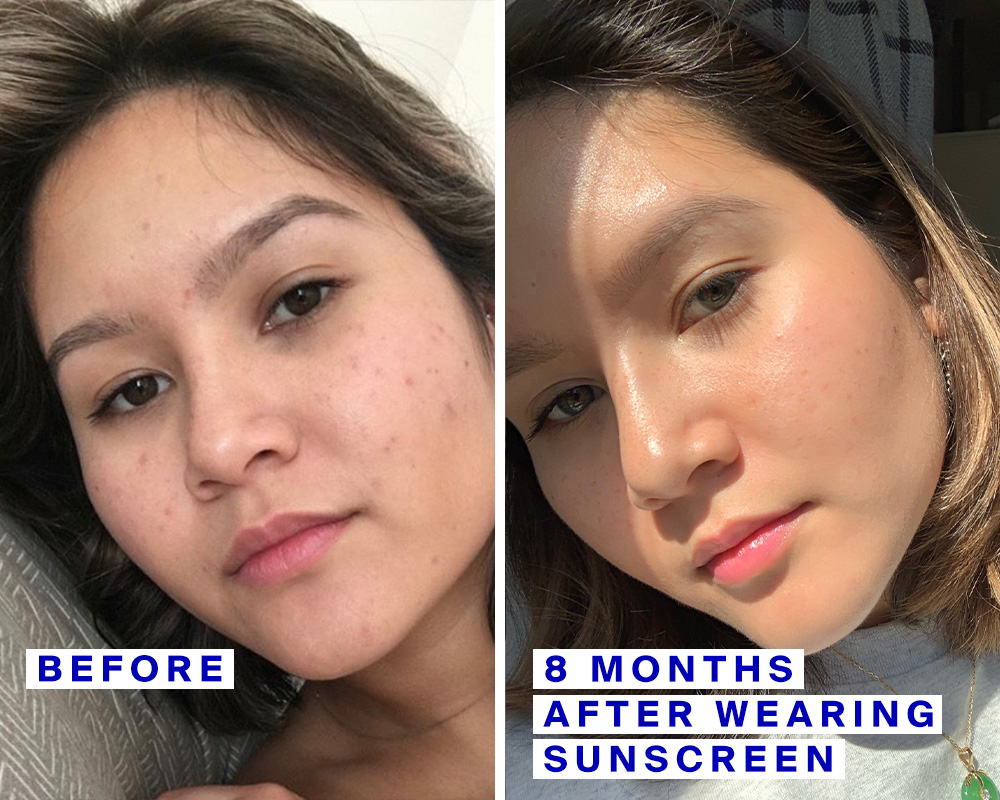 Acne Scars And Sunscreen 2 Stories About How Spf Helped Fade Them